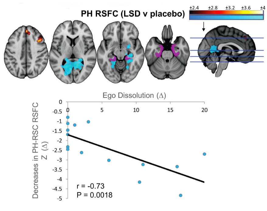 """Resultados da ressonância magnética funcional revelaram que o LSD diminui a conexão entre a região parahipocampal e outras áreas do cérebro, o que está relacionado ao efeito de """"dissolução do ego"""""""