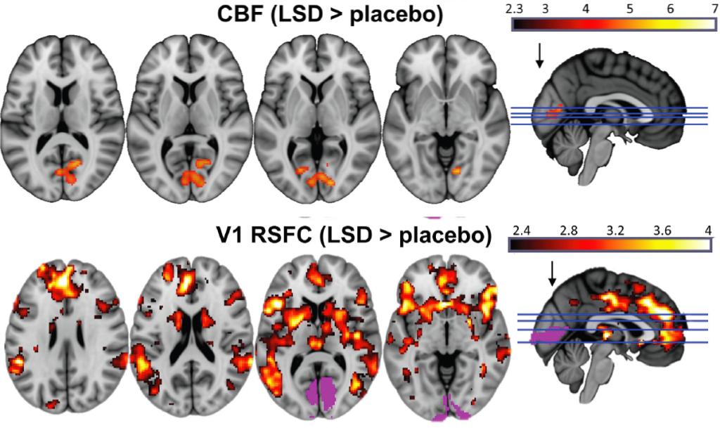 injeção de LSD aumentou fluxo sanguíneo em áreas do córtex cerebral relacionadas a visão. A atividade neural em diversas outras regiões do cérebro estavam associadas a este aumento, incluindo o córtex frontal, o que pode ajudar a explicar o fenômeno de imagética consciente com os olhos fechados.