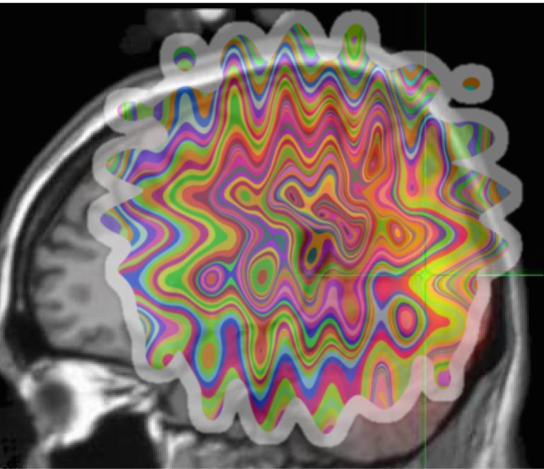 O admirável cérebro novo